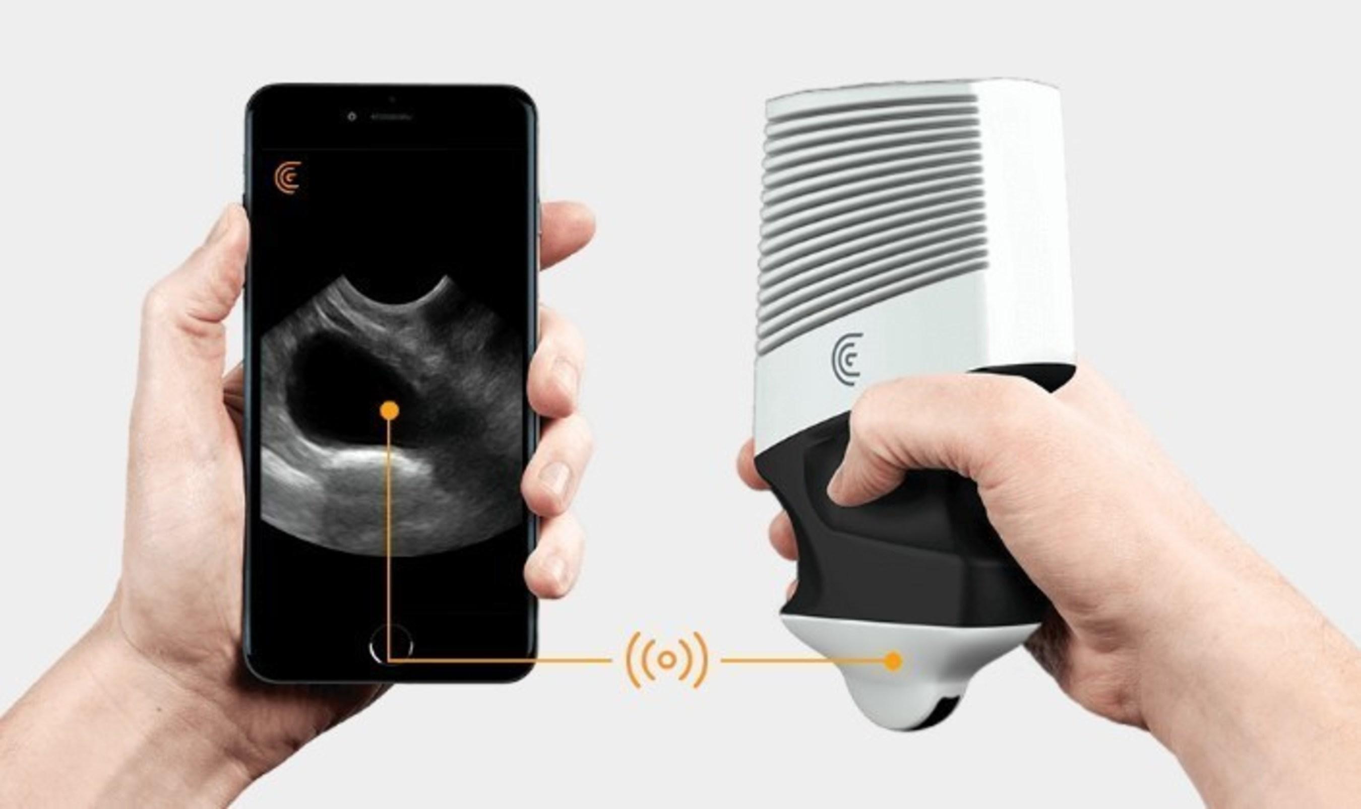 スマートフォン用のワイヤレス超音波スキャナー獣医にとって手頃なオプション
