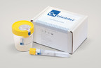 Cxbladder, urine-based tests for bladder cancer from Pacific Edge, Ltd.