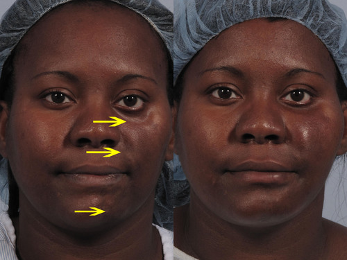 Emma before (left) and after (right) fat injections to the left side of her face.  (PRNewsFoto/Allure Medical ...