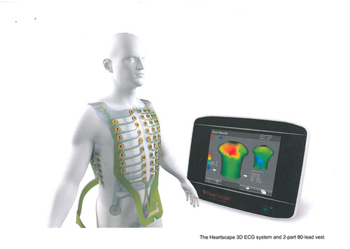 The Heartscape 3D ECG system and 2-part 80-lead vest.  (PRNewsFoto/Verathon Inc.)