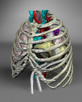 Phoenix Children's Hospital used CT scans and virtual 3D modeling to construct the patient's cardiopulmonary and skeletal structures with the SynCardia Total Artificial Heart in place. The hospital's surgeons conducted this virtual implantation to ensure the device could fit before performing the actual surgery.  (PRNewsFoto/SynCardia Systems, Inc.)