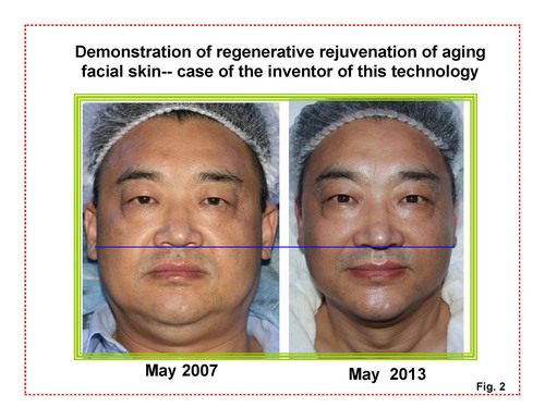 Demonstration of regenerative rejuvenation of aging facial skin-Dr. Rongxiang Xu shown in picture is the inventor of this technology.  (PRNewsFoto/MEBO INTERNATIONAL)