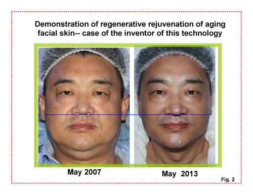 Dr. Rongxiang Xu, Inhaber des Patents zur Regeneration beschädigter ...
