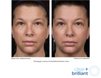 Clear + Brilliant Permea Before and After, One Week Post Six Treatments.  (PRNewsFoto/Solta Medical, Inc.)