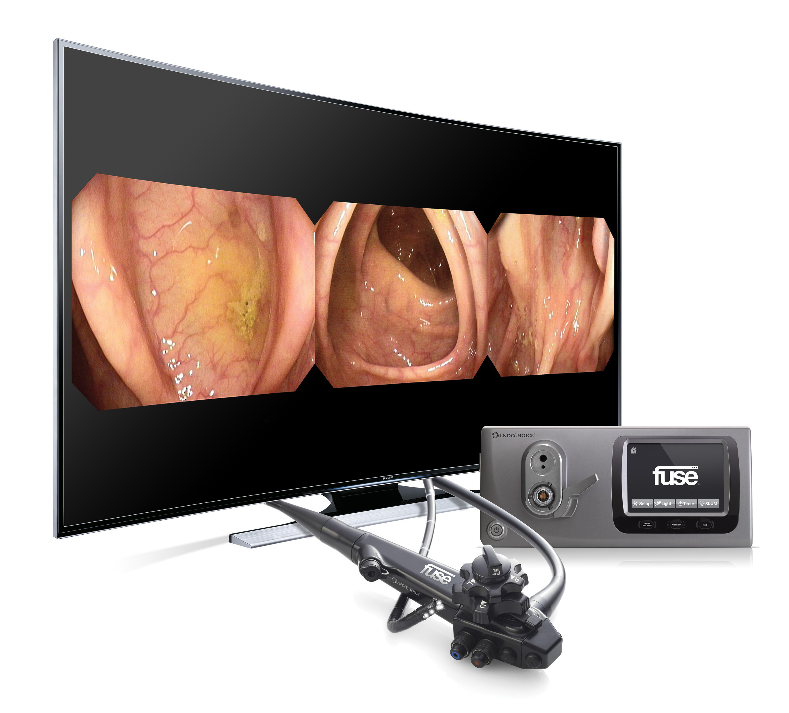 Fuse Second Generation Full Spectrum Endoscopy System Released By Commercial Electrical Box The Features A 4k Ultra Hd Monitor Available At Sizes Up To