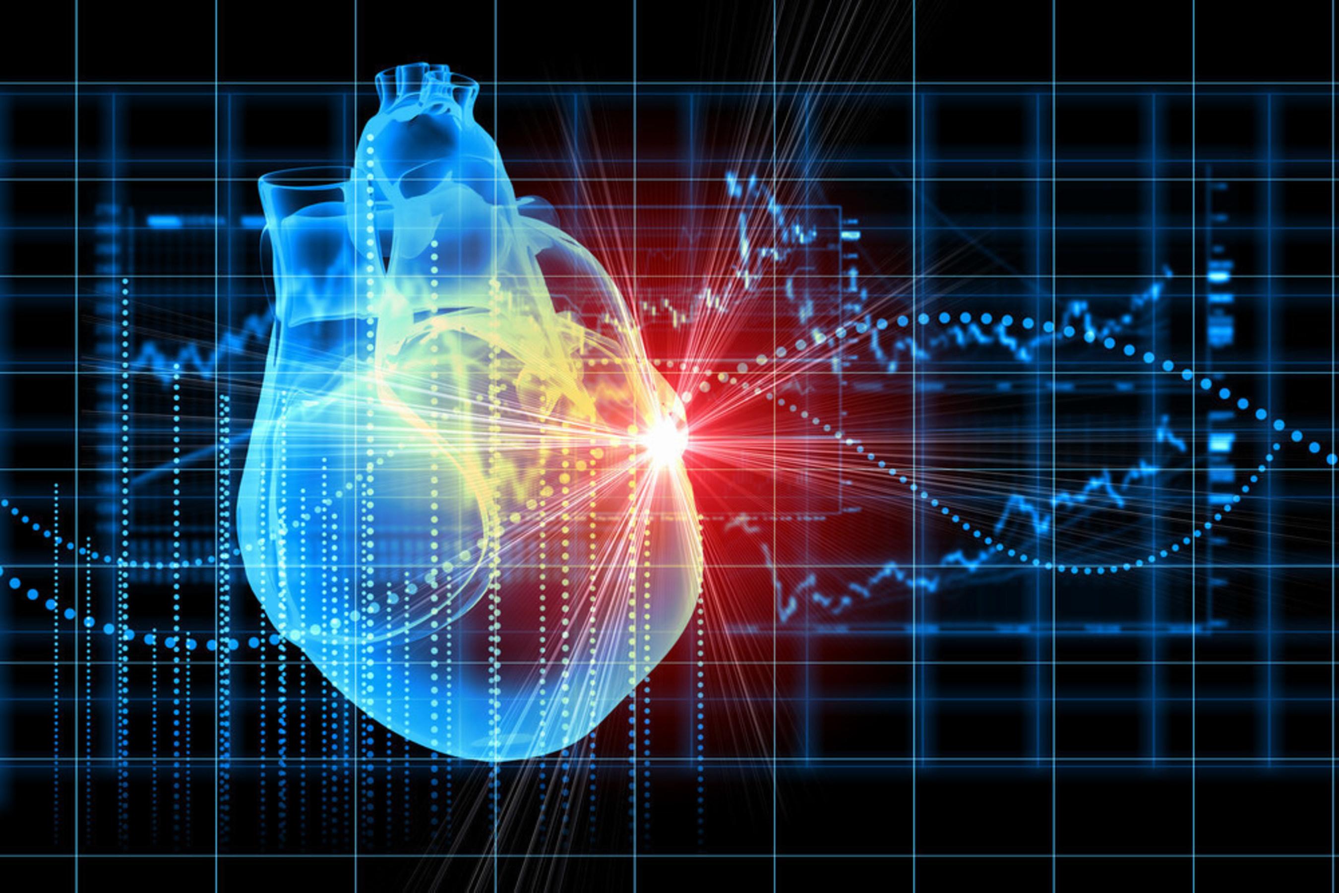 CardioNXT drives innovation in understanding and treatment of cardiac arrhythmias such as AFib.