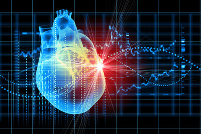 CardioNXT drives innovation in understanding and treatment of cardiac arrhythmias such as AFib.