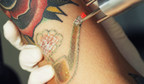 New Northern Michigan Tattoo Removal Erases Colorful Inks in Traverse City, MI with the Astanza Trinity