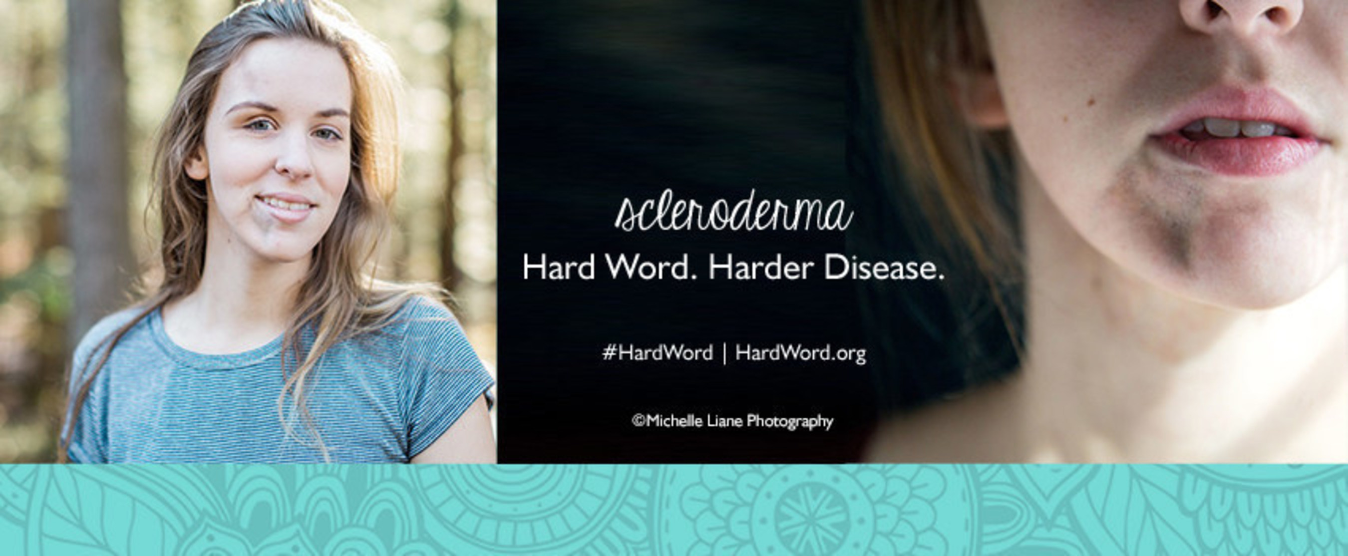scleroderma.  hard word.  harder disease.