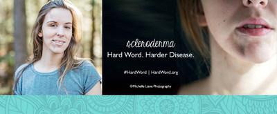 scleroderma.  hard word.  harder disease.