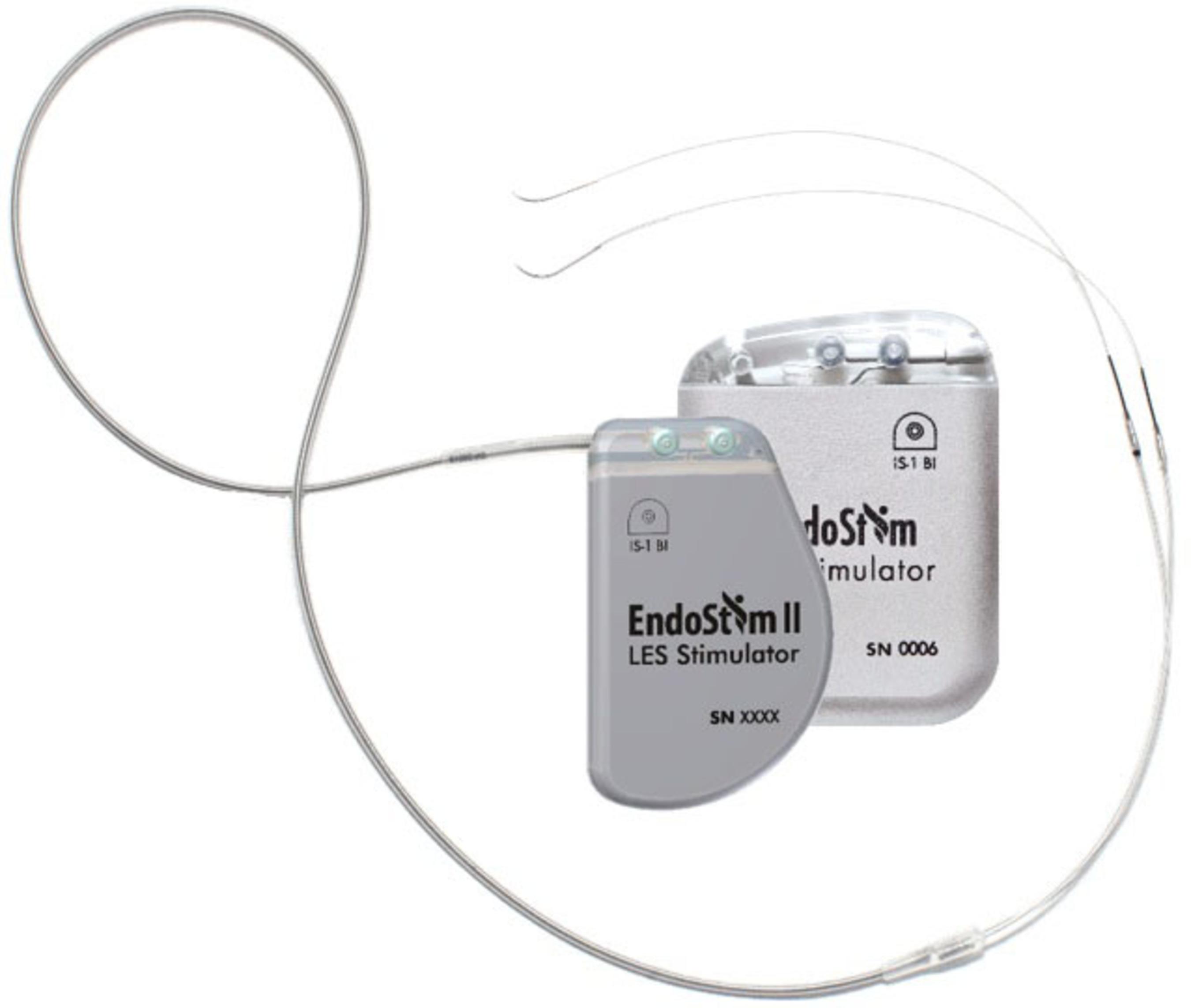 EndoStim Launches Second Generation Neurostimulation Device for GERD