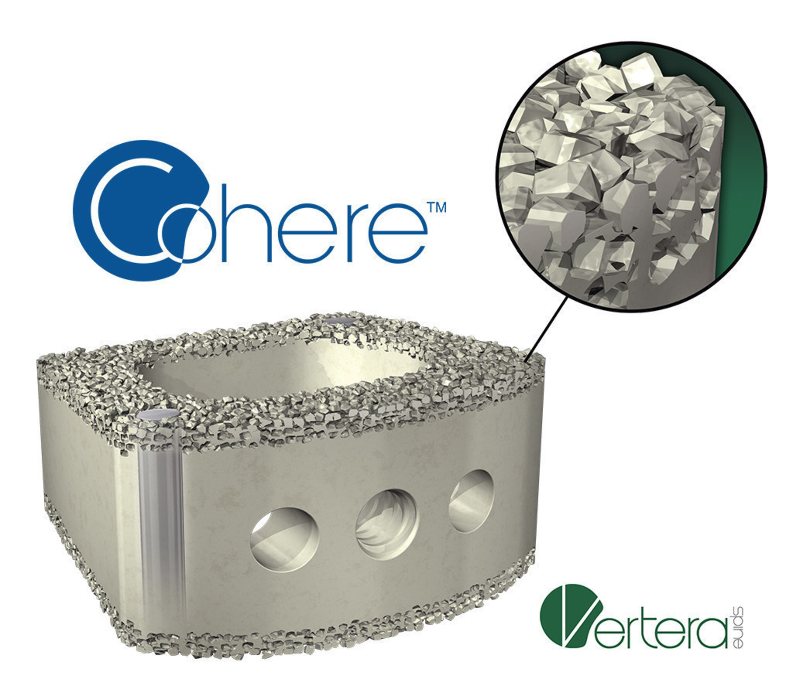 Vertera Spine Announces FDA Clearance of the First Surface Porous PEEK Interbody Fusion Device