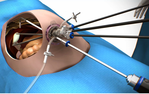 This illustration represents the positioning of the TriPort+ and surgical instruments during a LESS ...