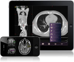 Mobile MIM, the first FDA-cleared diagnostic medical imaging app, provides portable medical imaging for physicians when they cannot access a workstation.  Mobile MIM securely downloads CT, MRI, PET, and SPECT images and displays them using standard diagnostic tools on the iPhone(R), iPod touch(R), and iPad(R).  (PRNewsFoto/MIM Software Inc.)