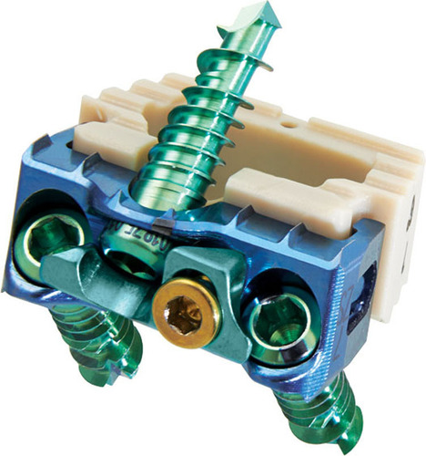 The Optio-C System from Zimmer Spine offers a no profile solution and delivers the strength, stability and ...