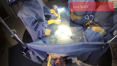 The anesthesiologist can keep their attention on the patient while also maintaining a view of IntelliVue vital signs via Google Glass as seen in this OR simulator lab test. (PRNewsFoto/Philips Healthcare)