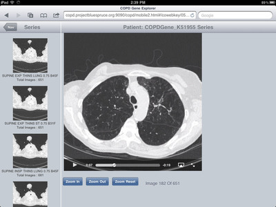 CT images for a specific patient viewable on an iPad as part of research being conducted on COPD. COPDGene(R) collaborators from around the globe can review and compare the clinical data and CT scan images of more than 10,000 individuals using IBM technology and the OpenCoweb Framework.  (PRNewsFoto/IBM Corporation)