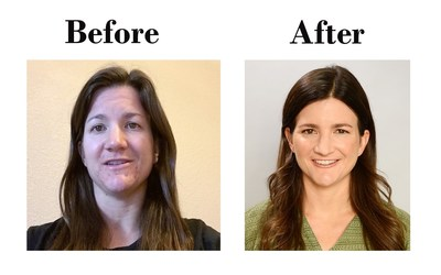 "Photographs of Kelly Clark before and after her treatment with Absorica. (""After"" photo credit: Denise Truscello)"