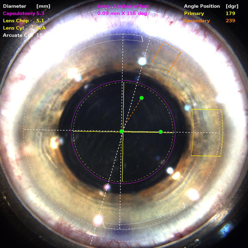 Corneal view of the eye displayed on LenSx monitor as seen by the surgeon.  (PRNewsFoto/Rand Eye Institute)