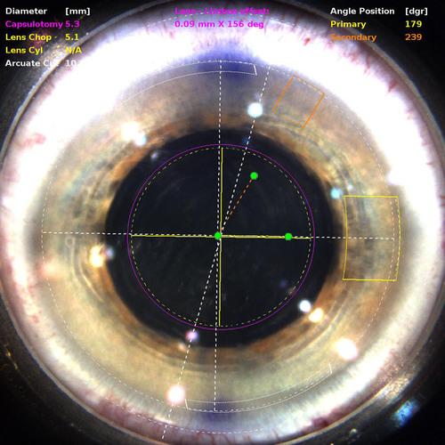 Rand Eye Institute Unveils High Def Custom LenSx® Laser Cataract Sx
