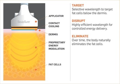 SculpSure's breakthrough body contouring technology.