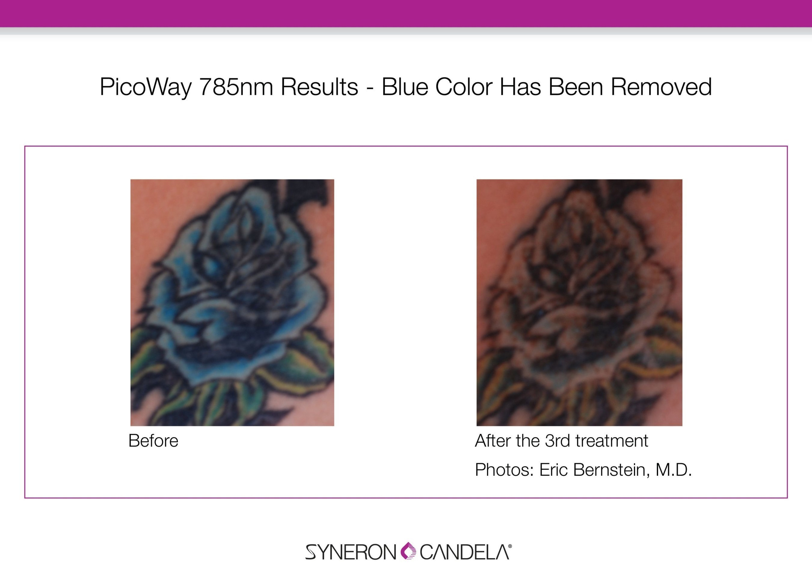 The efficacy and ability of the new 785nm wavelength is shown in this tattoo where the blue and green tattoo inks on the rose and leaves are easily removed in only two treatments.