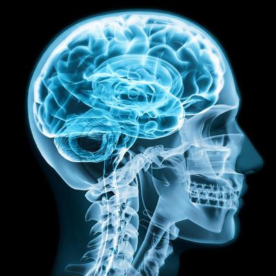 Medical Diagnostic Imaging Ampronix
