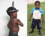 Julius before and after his life-saving tissue transplant.  (PRNewsFoto/AlloSource)