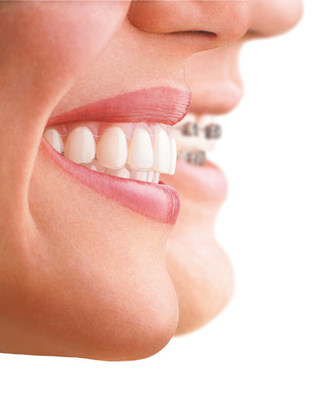 First Dedicated Center for Invisalign® Treatments Opens in Dubai