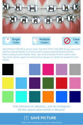 Braces Color Simulator