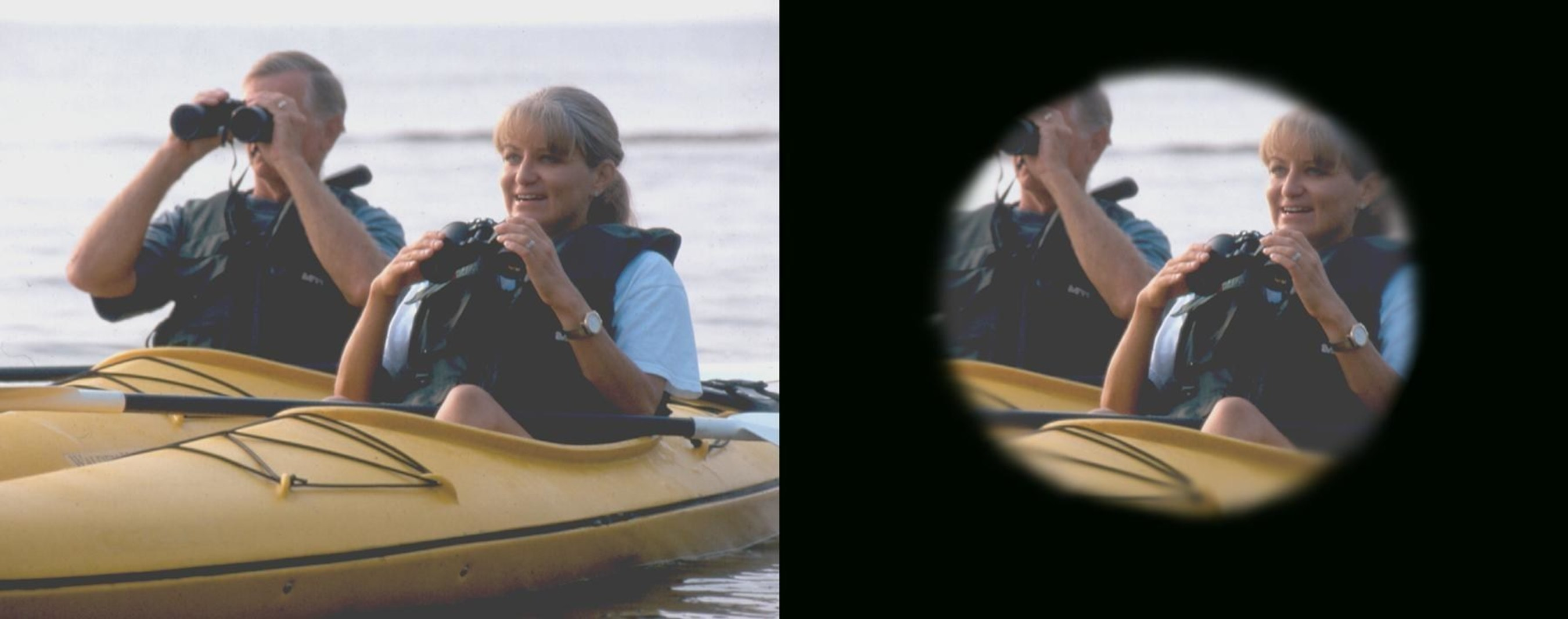 What does glaucoma look like? Glaucoma damages peripheral vision. The image on the left is what healthy eyes would see while the image on the right is what eyes with moderate glaucoma would see. (C) 2015 American Academy of Ophthalmology.
