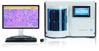 Full digitization of the anatomic pathology lab is here with the VENTANA System for Primary Diagnosis