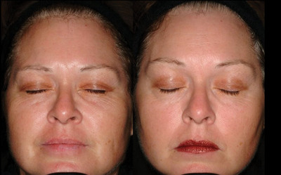 Before ReGenica(TM) Day and Night Repair and at Week 10. The patient applied ReGenica twice a day over a 10 week period resulting in the reduced appearance of fine lines and wrinkles.