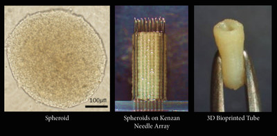 "The ""Kenzan Method"" constructs scaffold-free 3D tissue by lancing spheroids onto a fine needle array, or kenzan. The spheroids can be constructed into small spheres, rods, sheets, tubes or other tissue configurations. As the engineered tissue fully matures, the individual spheroids fuse with one another into the desired pattern within a range of approximately 10x10x10 millimeter at 500 µm resolution. Cell Applications is utilizing its comprehensive primary cell bank and Cyfuse Biomedical's Regenova(R)..."
