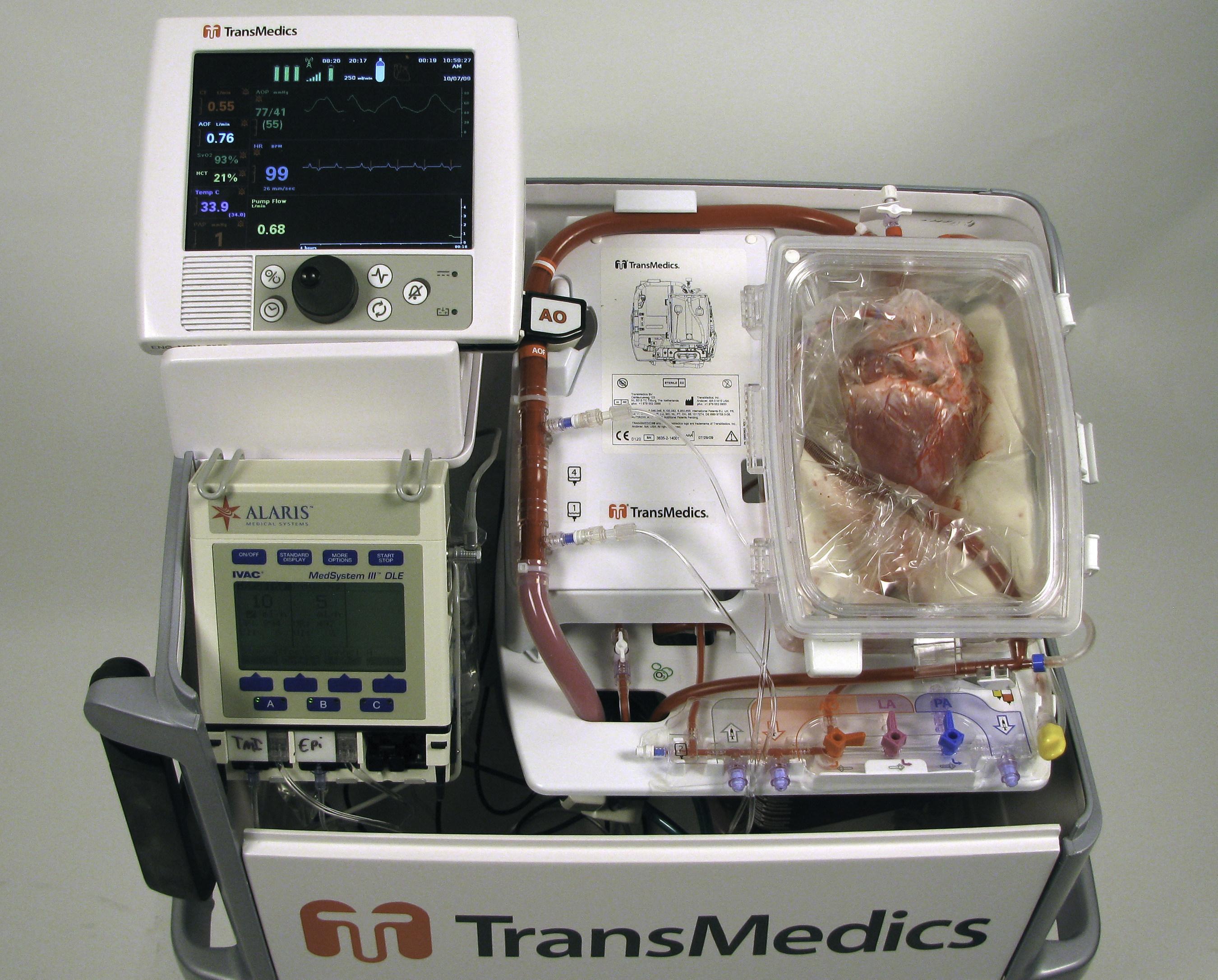 TransMedics® Organ Care System (OCS™) am Papworth Hospital für die erste europäische