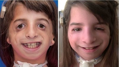 Hannah's pre-operative and post-operative photos show the differences in her facial features. On the right, Hannah smiles with cheek bones for the first time.