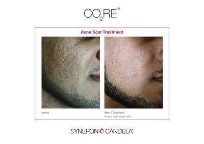 CO2RE Acne Scar Treatment