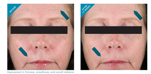 Ultrasound measurement was used to visualize the effects of SkinCeuticals Resveratrol B E within the skin; ...