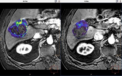 Quantitative tumor viability (qEASL*) before and after chemoembolization (TACE). Much of the viable tumor (colored) becomes less enhanced (transparent) after the treatment. Tumor viability percentage (represents the percentage of the entire tumor volume showing enhancement more than normal liver tissue), viability volume and total volume are automatically calculated. *For research use only