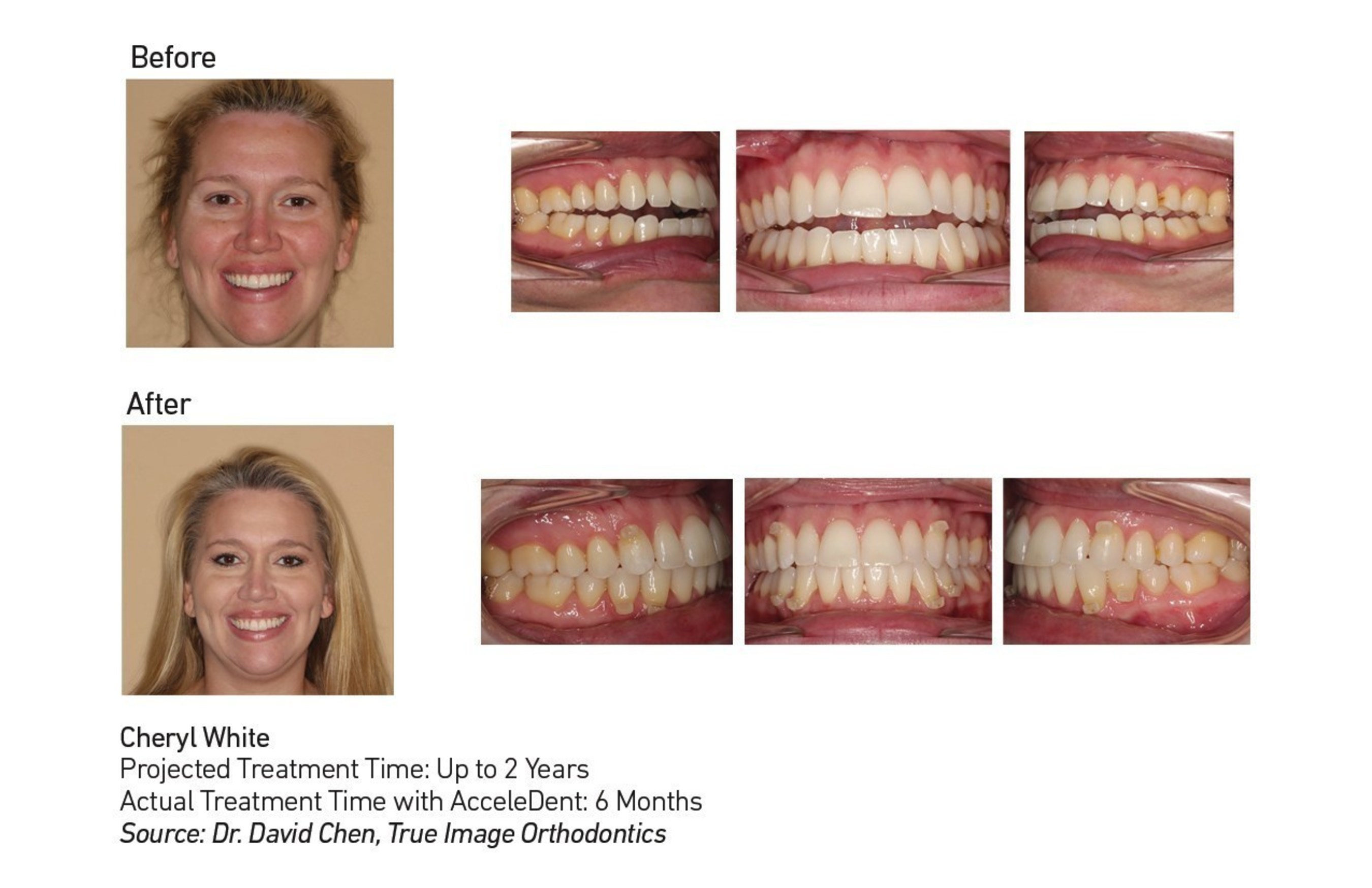 A professional singer and music teacher, Cheryl White completed orthodontic treatment with AcceleDent in just six months to correct an open bite. Her orthodontist, Dr. David Chen of True Image Orthodontics in Cypress, Texas, said that correction of an open bite can take up to two years. AcceleDent is an FDA-cleared vibratory orthodontic device that works in conjunction with braces or aligners to speed up orthodontic treatment by as much as 50 percent.