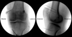 Fluoroscopic images display the anteroposterior and lateral views of the left knee joint. RF electrode tips were placed on periosteal areas connecting the shaft of the femur to bilateral epicondyles and the shaft of the tibia to the medial epicondyle. Superior medial, superior lateral and inferior medial genicular nerves supply pain signals back to the central nervous system.  (PRNewsFoto/American Spine)