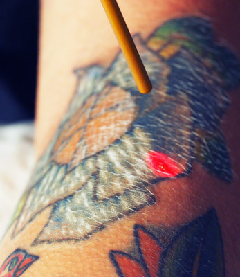 Colorful tattoos are easily removed at Origin Tattoo Removal Clinic in Downtown Minneapolis