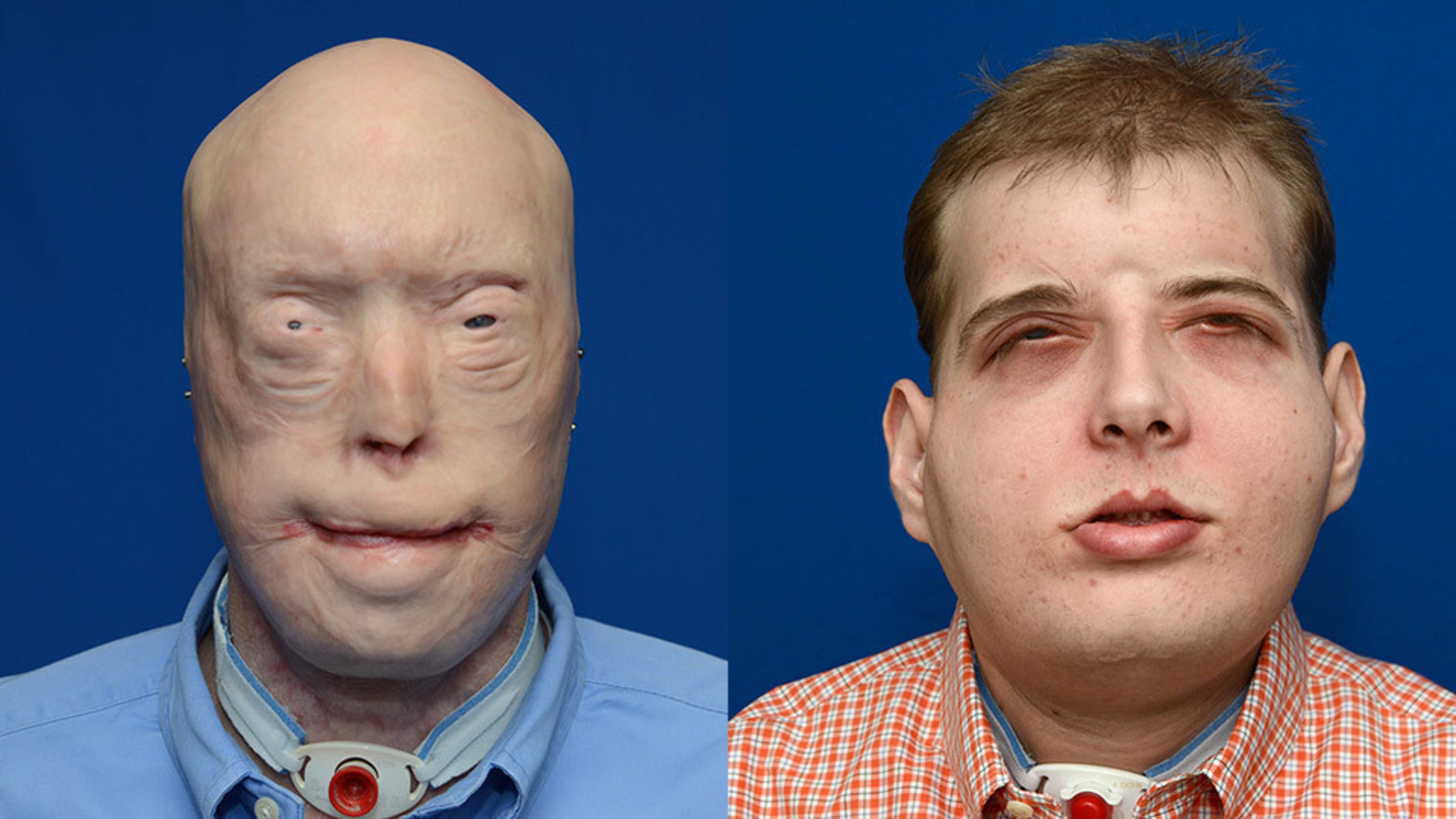Patrick Hardison: before and after face transplant