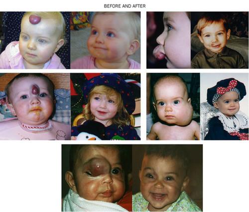 The Vascular Birthmark Foundation making a difference.  (PRNewsFoto/Vascular Birthmark Foundation)