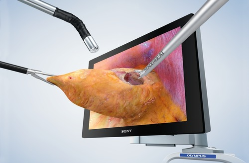 """Olympus' ENDOEYE FLEX 3D articulating videoscope was named the """"Breakthrough Technology of the ..."""