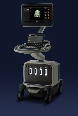 Philips EPIQ ultrasound system.  (PRNewsFoto/Royal Philips Electronics)