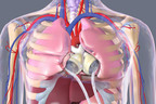 A dying heart doesn't pump enough blood to sustain the body, causing vital organs to shut down, which can lead to death. The SynCardia Total Artificial Heart pumps up to 9.5 L/min of safe blood flow through each ventricle. This high volume of blood helps rejuvenate the patient. When a donor heart becomes available, most patients are in much better condition to receive their heart transplant.  (PRNewsFoto/SynCardia Systems, Inc.)
