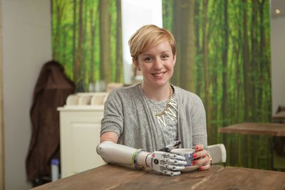 First UK user receives worldâeuro(TM)s most lifelike bionic hand: Nicky Ashwell becomes first UK user (PRNewsFoto/Steeper)