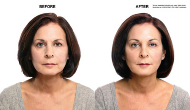 Marlene - Before and After (CNW Group/Allergan) (CNW Group/Allergan Inc.)
