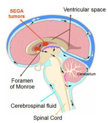 Les SEGA, une manifestation commune de la sclérose tubéreuse de Bounervielle, sont un type de tumeurs cérébrales bénignes qui touchent principalement les enfants et les adolescents. (Groupe CNW/Novartis Pharma Canada inc.)